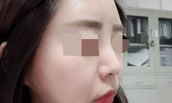 강남본점 이마필러 무보정셀카 후기