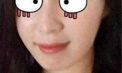 미앤미강남점 스컬트라+이마필러후기